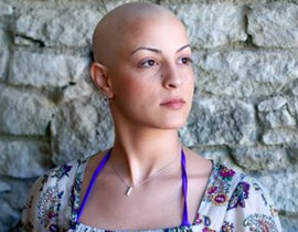 الصلعة النسائية تجربة جنون أم موضة؟ bald.jpg