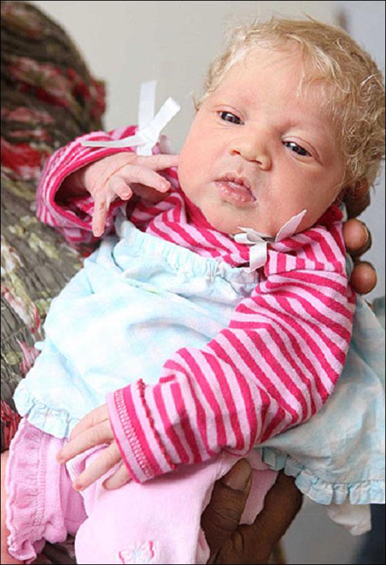 ولادة استثنائية: طفلة بيضاء بعينين زرقاوين لوالدان أسودان!