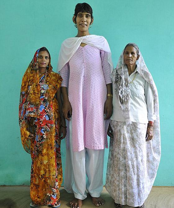 أطول امرأة العالم يسجل أطول