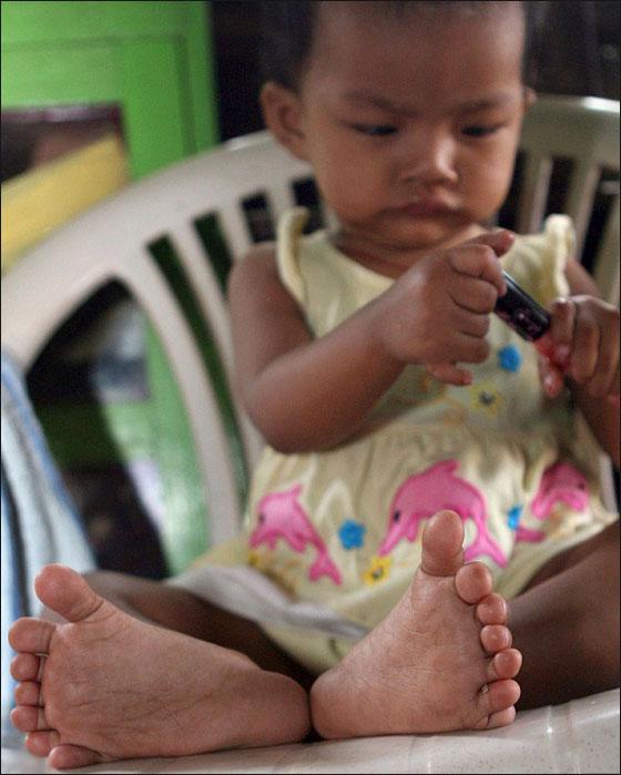 اليكم الطفلة ذات الـ26 اصبع وهي في طريقها لدخول غينيس Efyon2