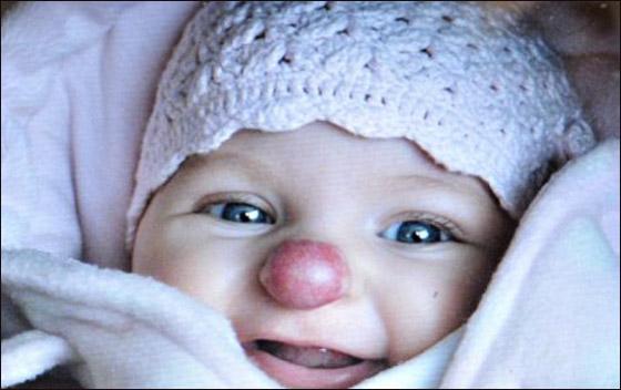"""طفلة تولد مع """"انف مهرج"""" بسبب ورم غريب وتتعرض للمضايقات"""
