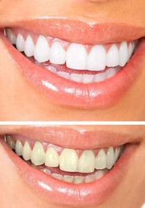 تابعي هذه الوصفات لتحافظي على بياض اسنانك!