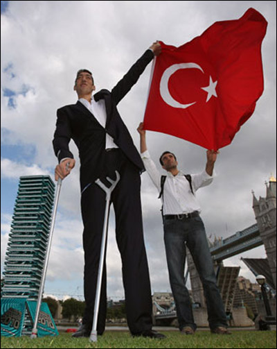 التركي الاطول في العالم توقف عن النمو بعد خضوعه لعملية جراحية