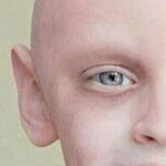 صورة لنفس الطفل أثناء صراعه مع مرض السرطان و بعد أن شفي منه ..