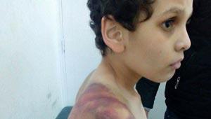 مصرية تشوه جسد ابن زوجها بالضرب والتعذيب حتى اغمي عليه بالمدرسة