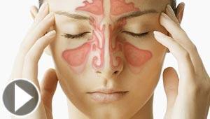 التهاب الجيوب الانفية يسبب الاكتئاب والشعور بالنعاس