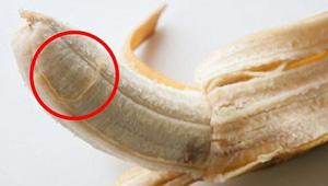 لماذا ينبه الاطباء من ازالة خيوط الموز؟